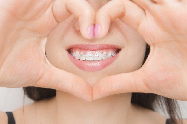 Что такое ортодонтия, фото-1