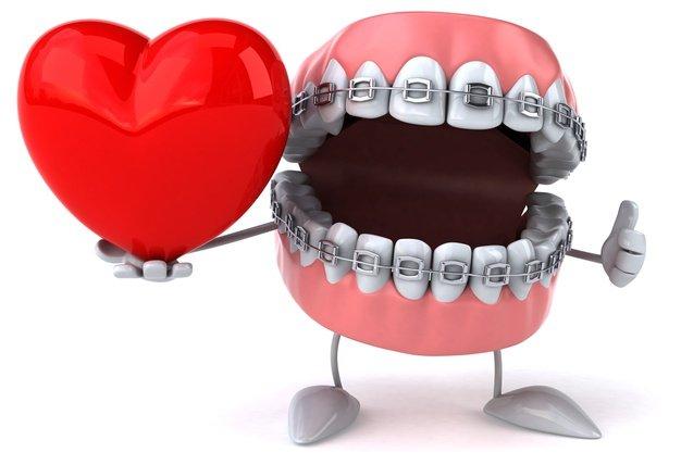 Что такое ортодонтия, фото-4