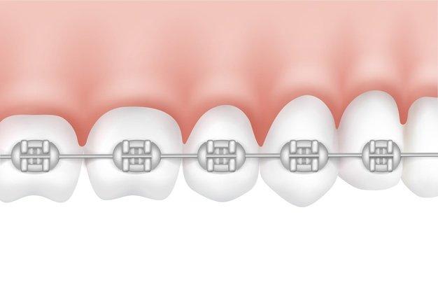 Что такое ортодонтия, фото-2