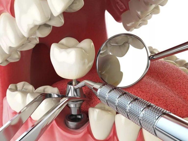 Терапевтическое, пародонтологическое и хирургическое лечение зубов. , фото-1
