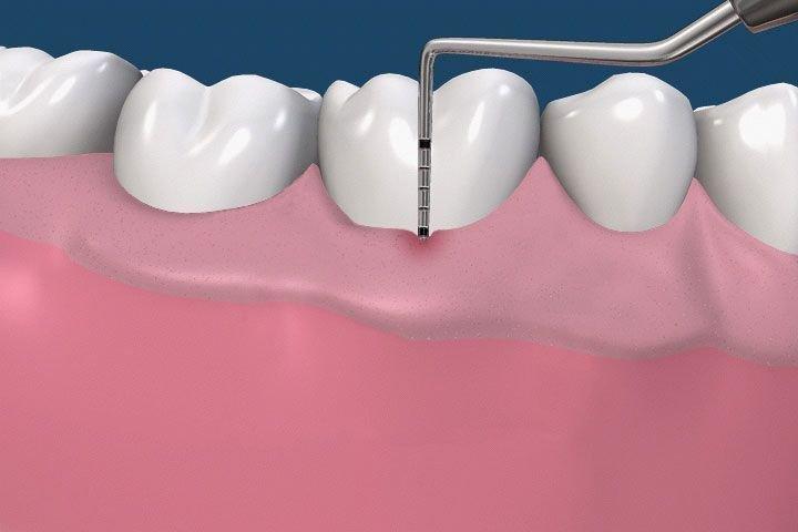 Терапевтическое, пародонтологическое и хирургическое лечение зубов. , фото-3