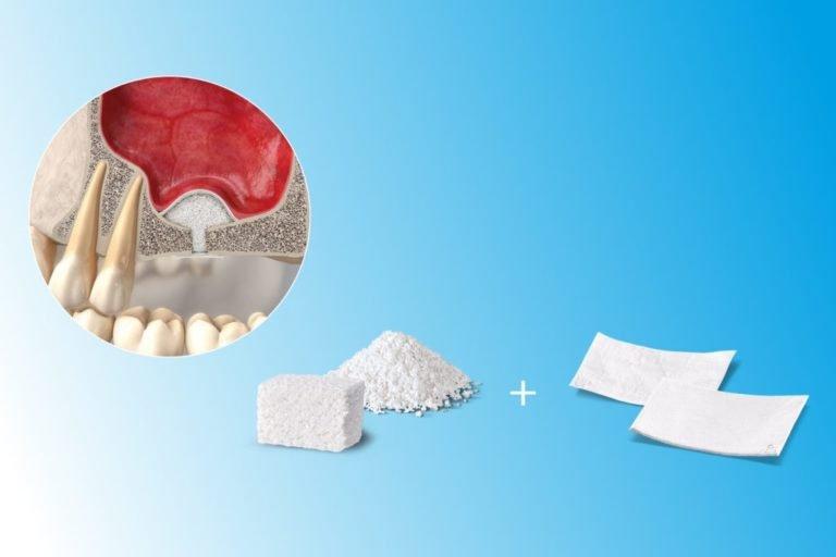 Терапевтическое, пародонтологическое и хирургическое лечение зубов. , фото-2