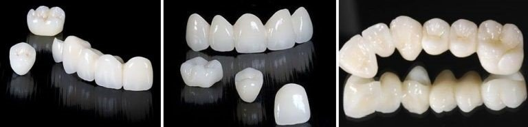 Ортопедическая стоматология, фото-1