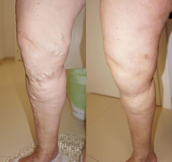 Ножки с обложки, или как избавиться от варикоза раз и навсегда, фото-2