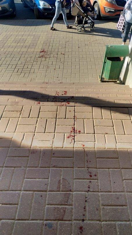 Белгородец получил травмы при попытке ограбления супермаркета «Магнит», фото-2