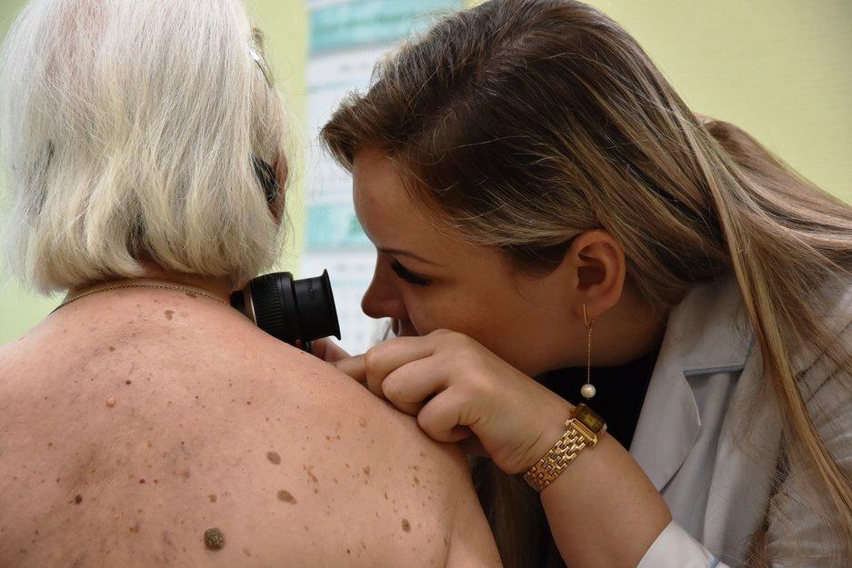 В онкодиспансере почти 300 белгородцев бесплатно обследовали родинки на рак , фото-3